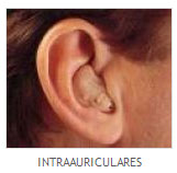 intraauriculares