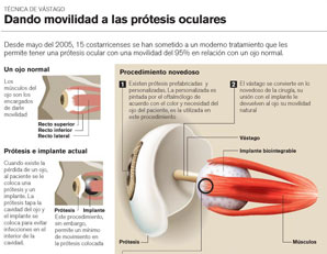 protesis-oculares4